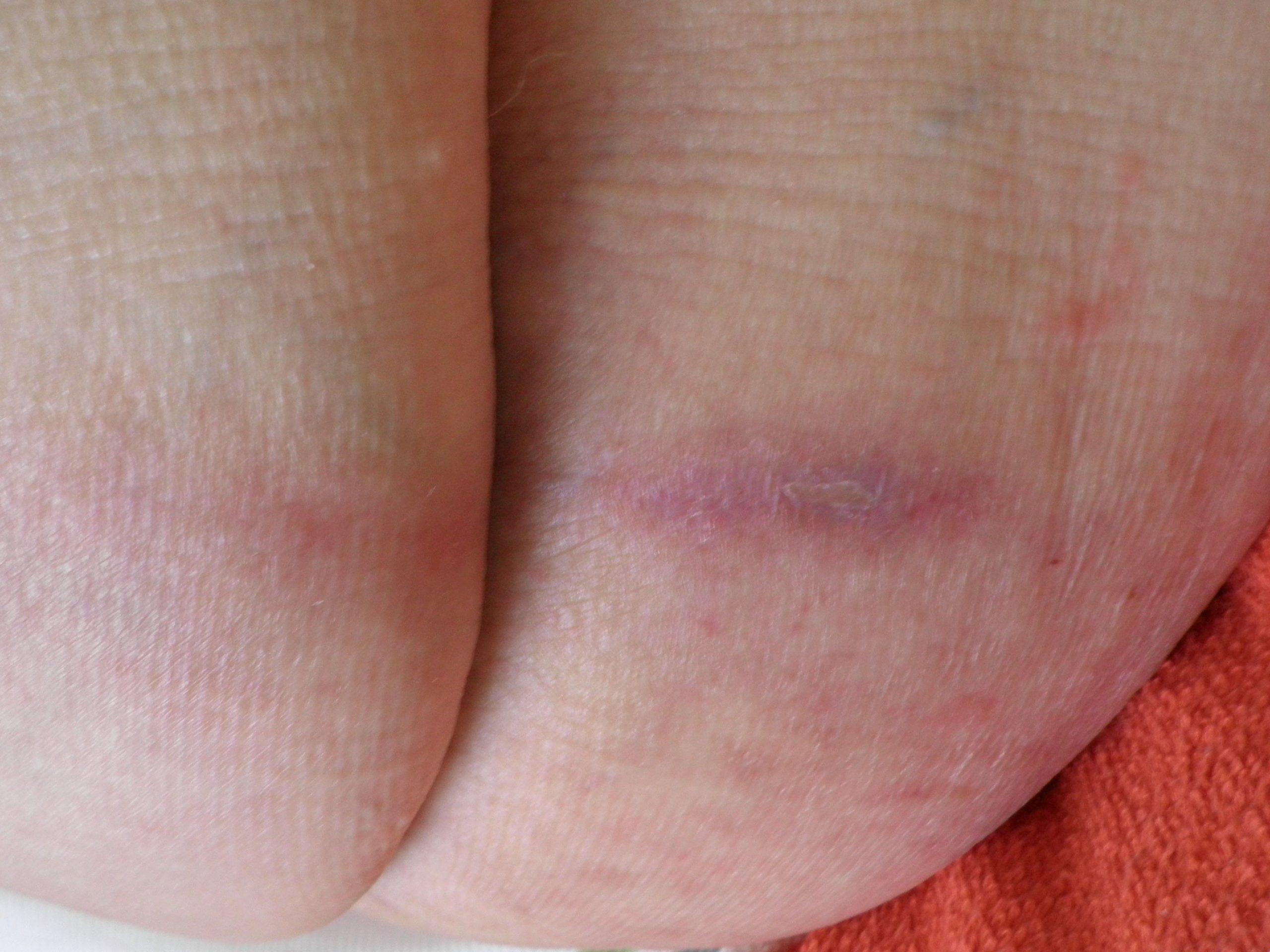 Wunde abgeheilt nach 3 Wochen